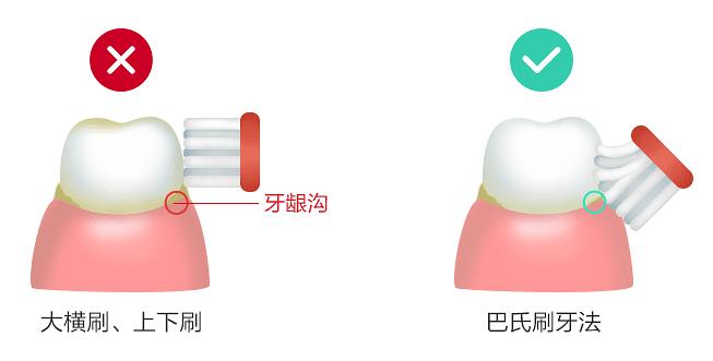 正しい歯の磨き方と悪い例